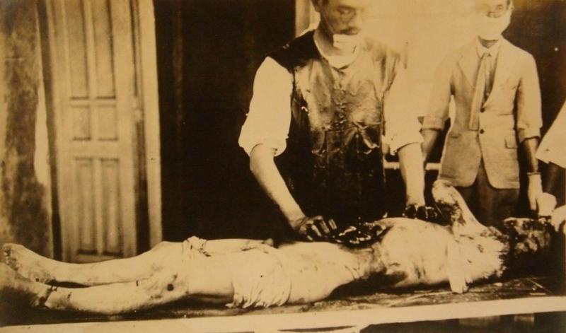 Birim 731'in Kurbanlarından Biri - Korkunç Deneyler