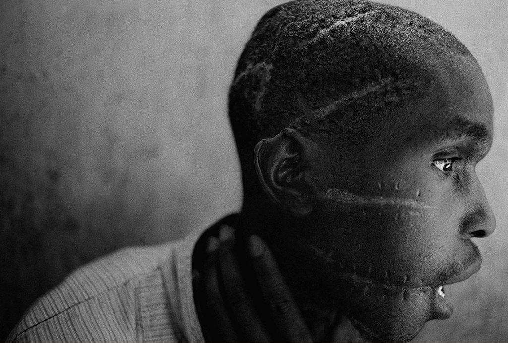 Tutsi isyancılarla görüştüğü için askerler tarafından işkence gören bir adam. Fotoğraf: James Nachtwey, ABD